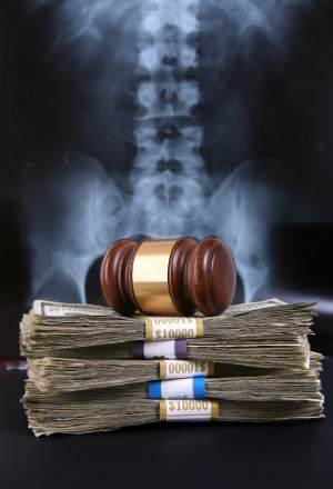 Stacked money with gavel on top and xray of spine behind